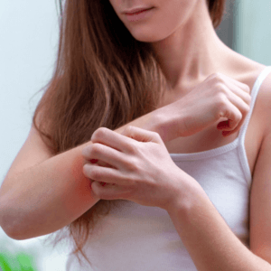 how to help mosquito bites not itch